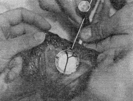 Объективная оценка жизнеспособности кишечника после дезинвагинации.